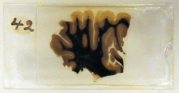 pedaço do cérebro de Einstein